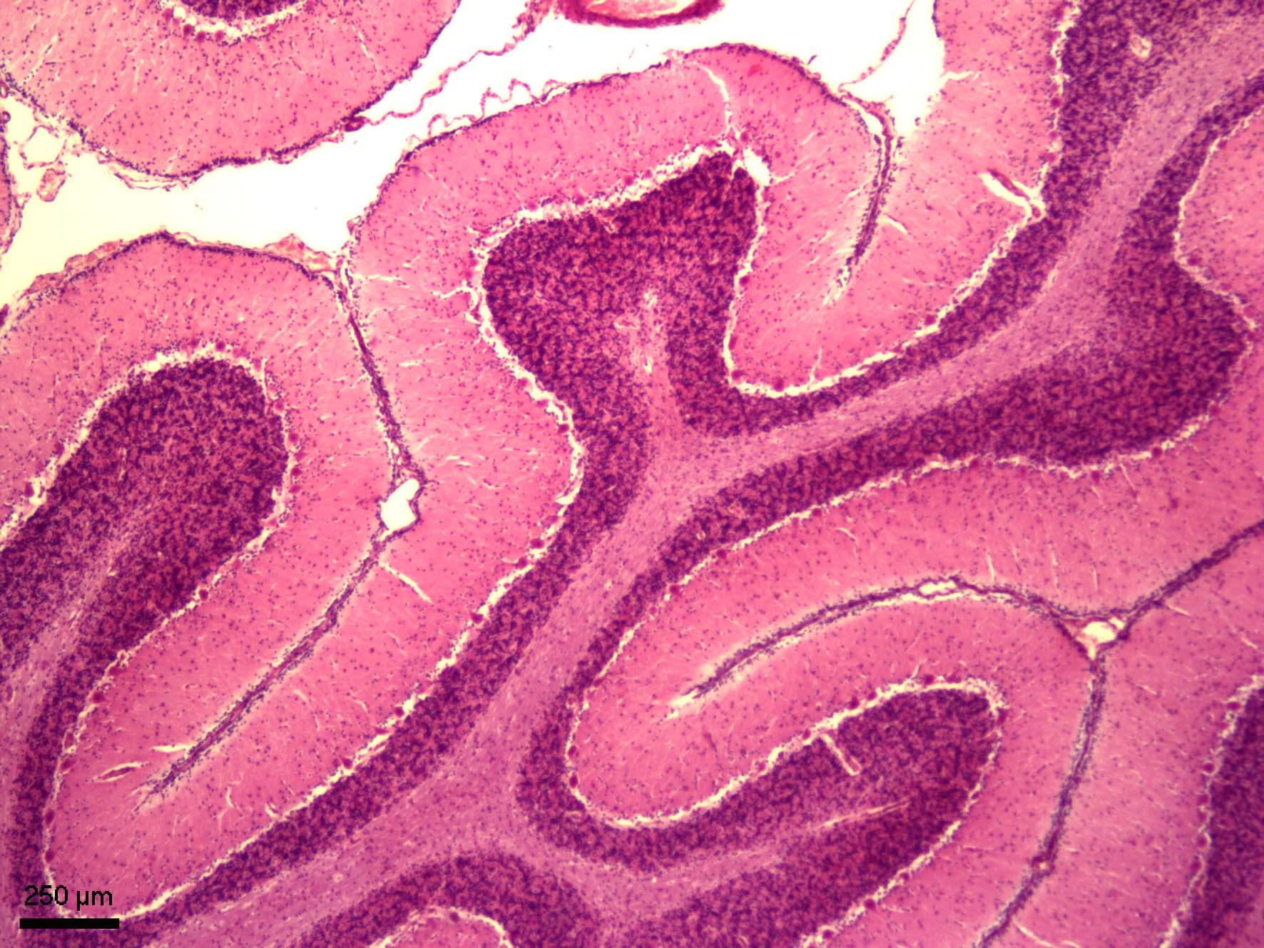 Mozeček (cerebellum)