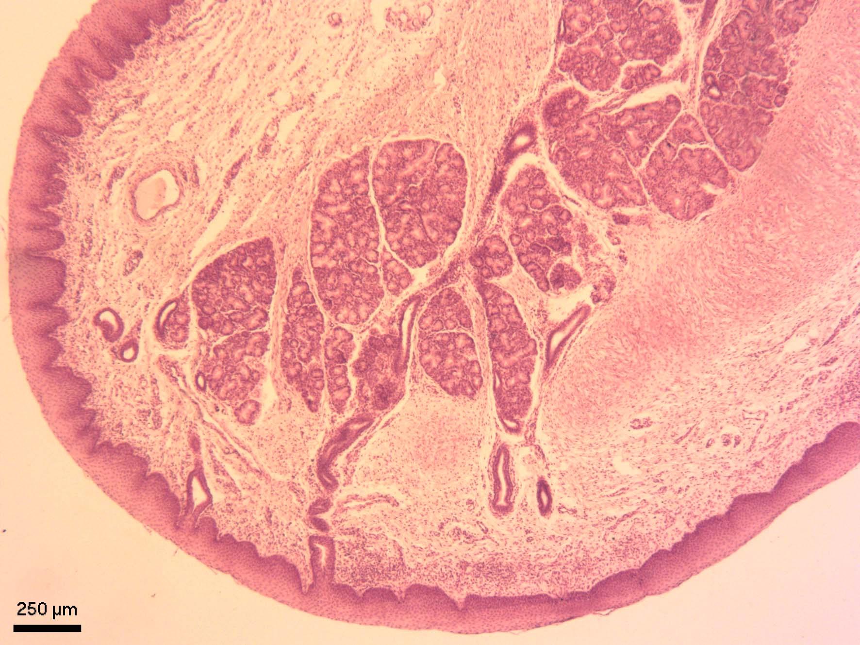 Příklopka hrtanová (epiglottis)