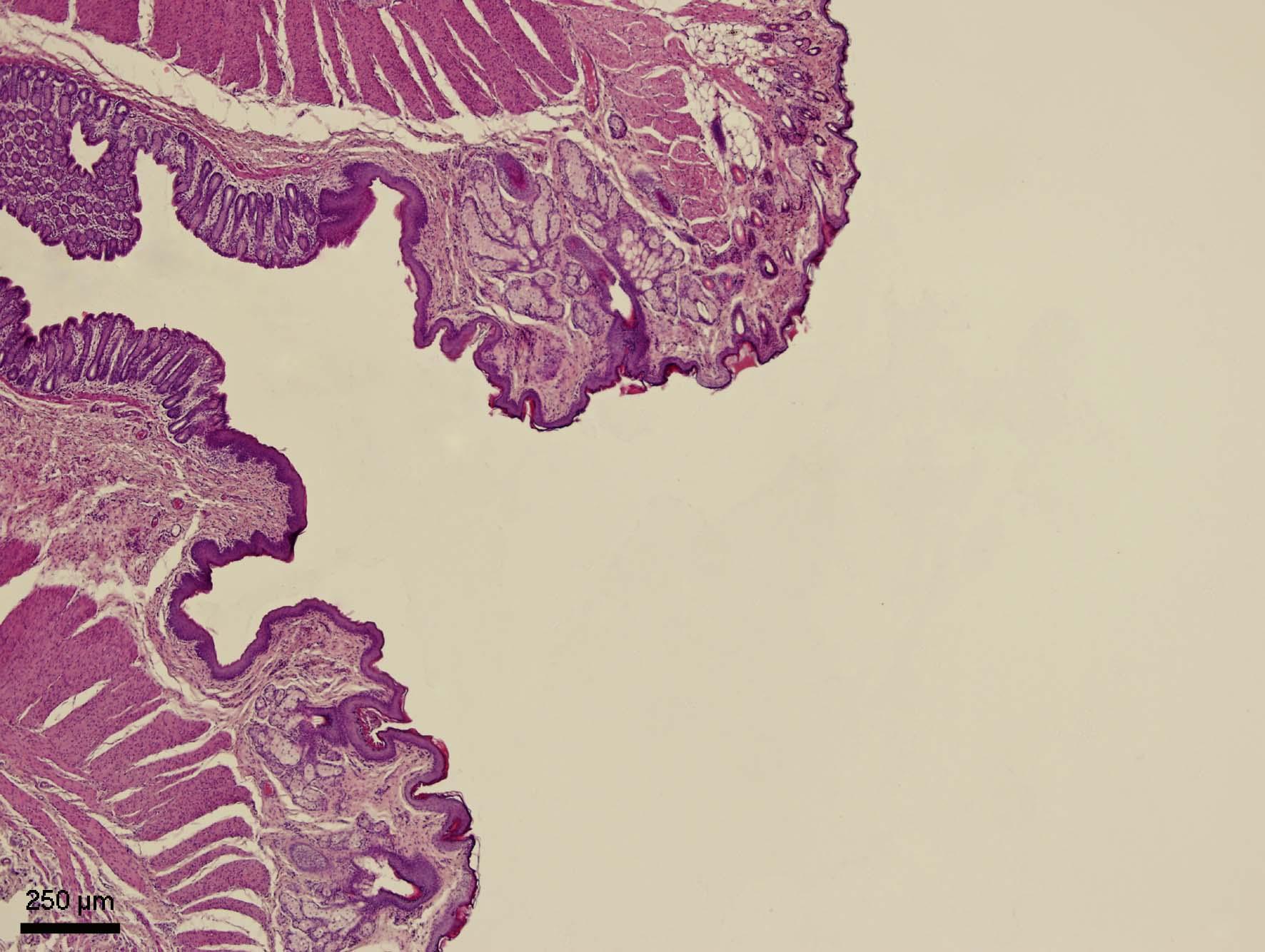 Řitní kanál (canalis analis)