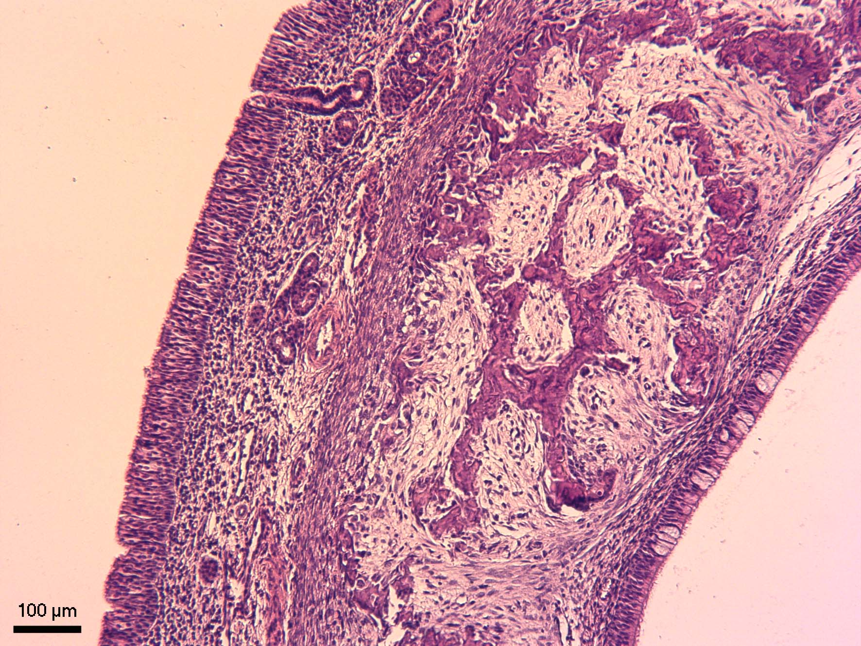 Dýchací okrsek nosní sliznice (regio respiratoria tunicae mucosae nasi)