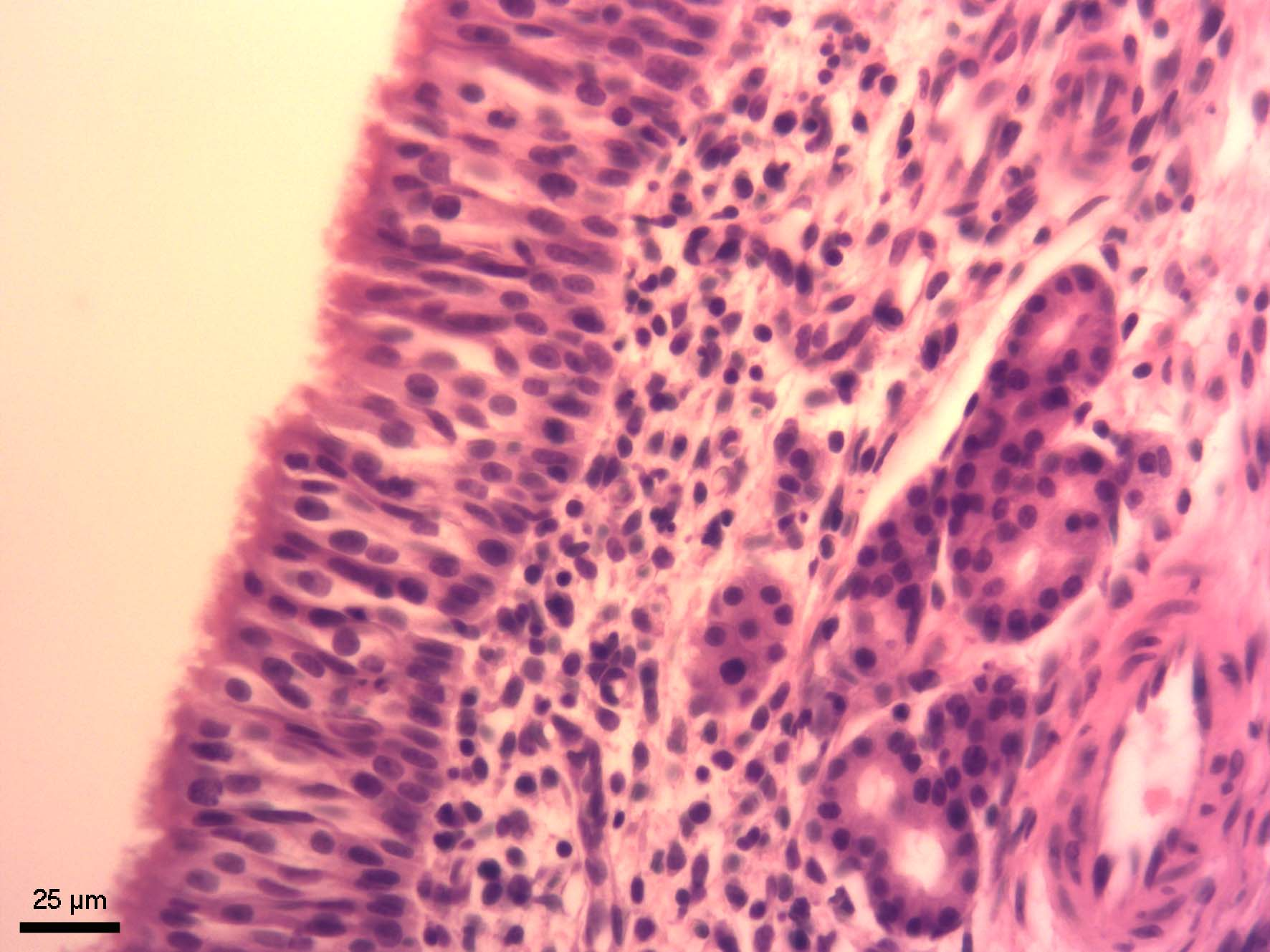 Čichový okrsek nosní sliznice (regio olfactoria tunicae mucosae nasi)